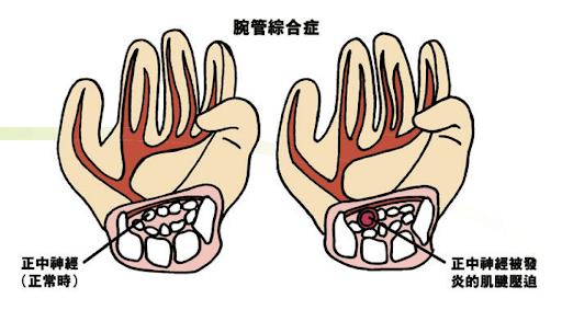 腕管綜合癥|中醫