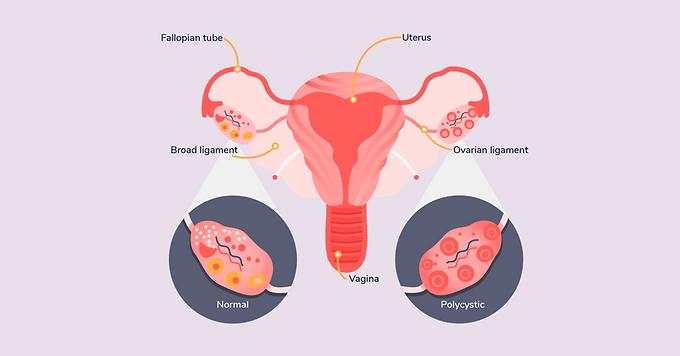 中藥人工週期於多囊卵巢綜合征的應用