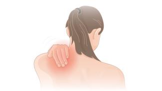 肩周炎的中醫治療 - 病案分享