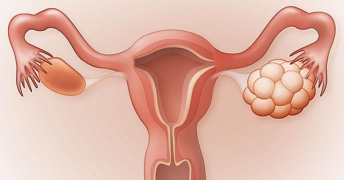 多囊性卵巢症與中醫