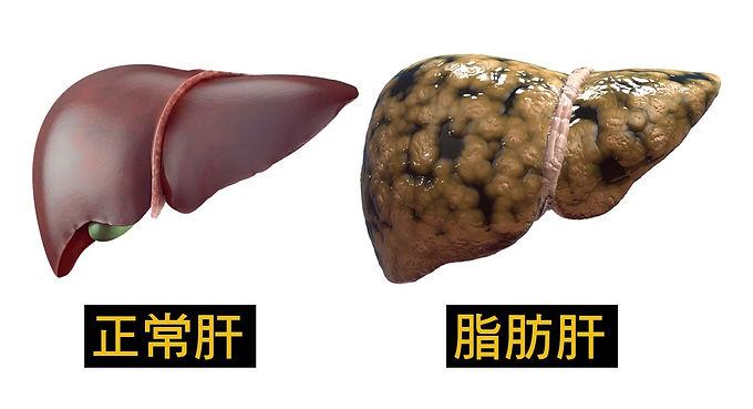 脂肪肝的飲食運動注意事項