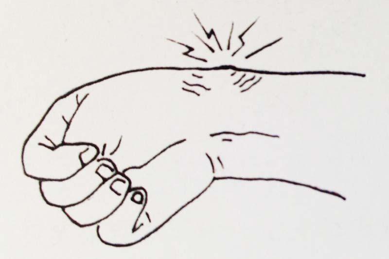 橈骨莖突狹窄性腱鞘炎|中醫