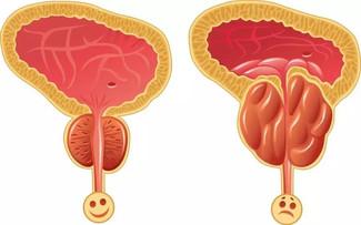 慢性前列腺炎食療方