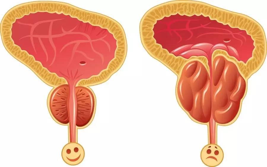 慢性前列腺炎|中醫
