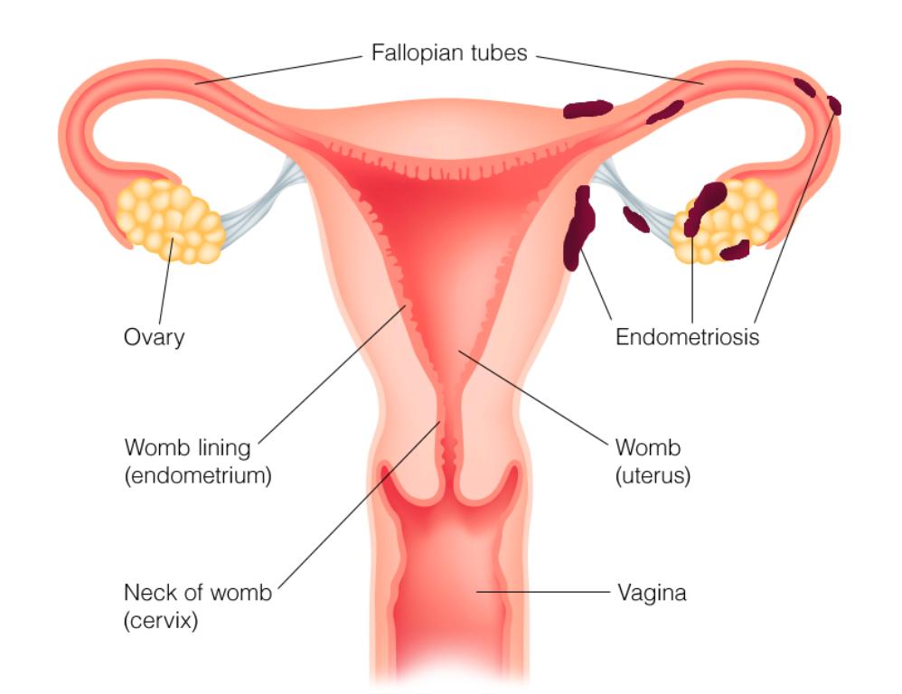 子宮內膜異位症|中醫