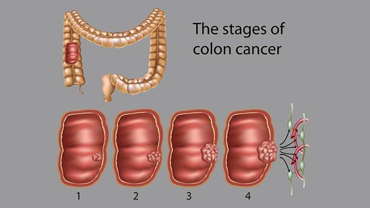 大腸癌|中醫