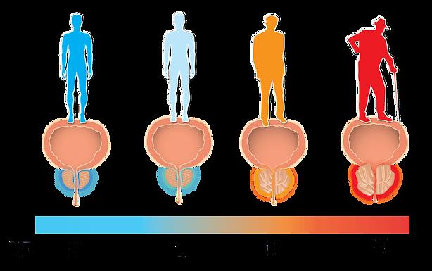 前列腺炎患者個人保養