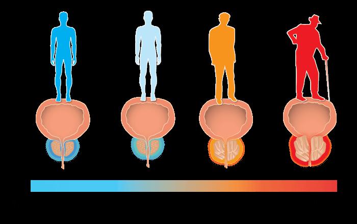 前列腺炎|中醫