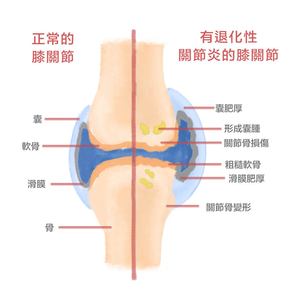膝關節退行性病變|中醫
