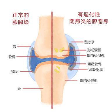 淺談桂枝芍藥知母湯治療膝關節退行性病變