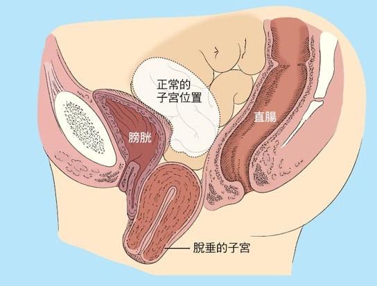 子宮脫垂 中醫