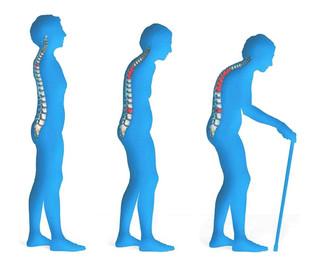婦女隱患--骨質疏鬆症