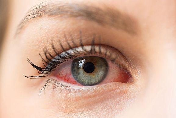 春夏季節中醫防治紅眼病