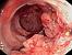 рак ободочной кишки, аденокарцинома, онкология, колопроктология