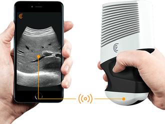 Устройство будущего - Беспроводной портативный УЗ сканер