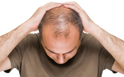 male genetic hair loss