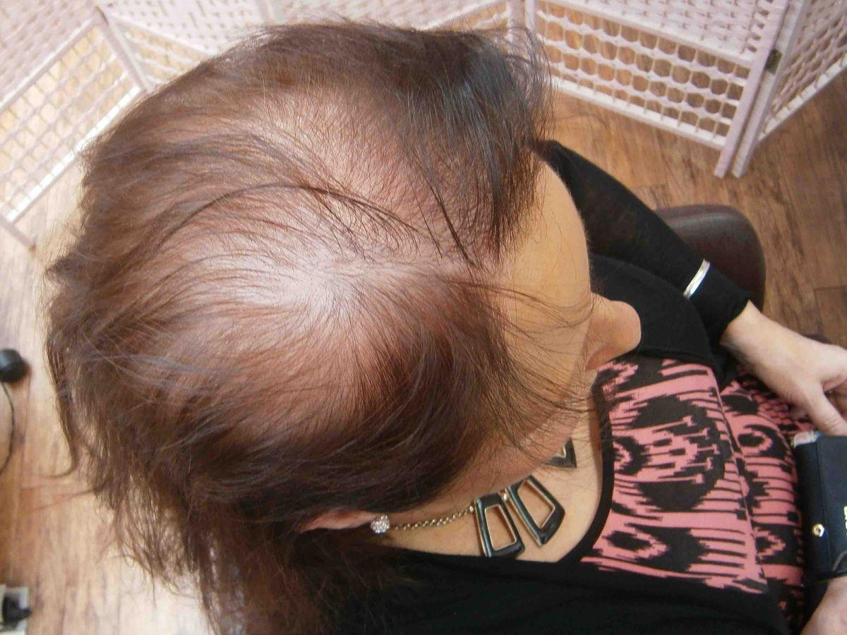 female genetic hair loss