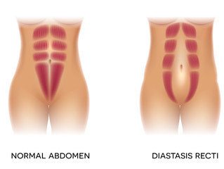 Do you have Recti diastasis?