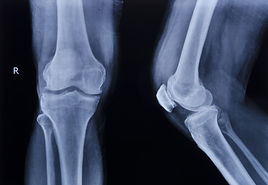 Knee Xray Beachesphysio.jpg