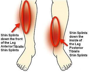 leg pain ballarat