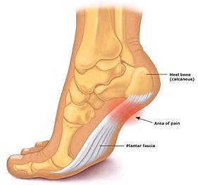 heel pain ballarat