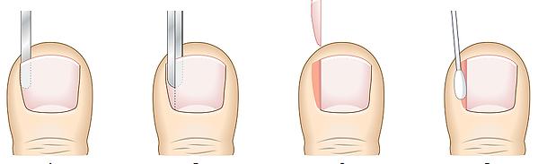 ingrown toe nail removal. ingrown nail ballarat