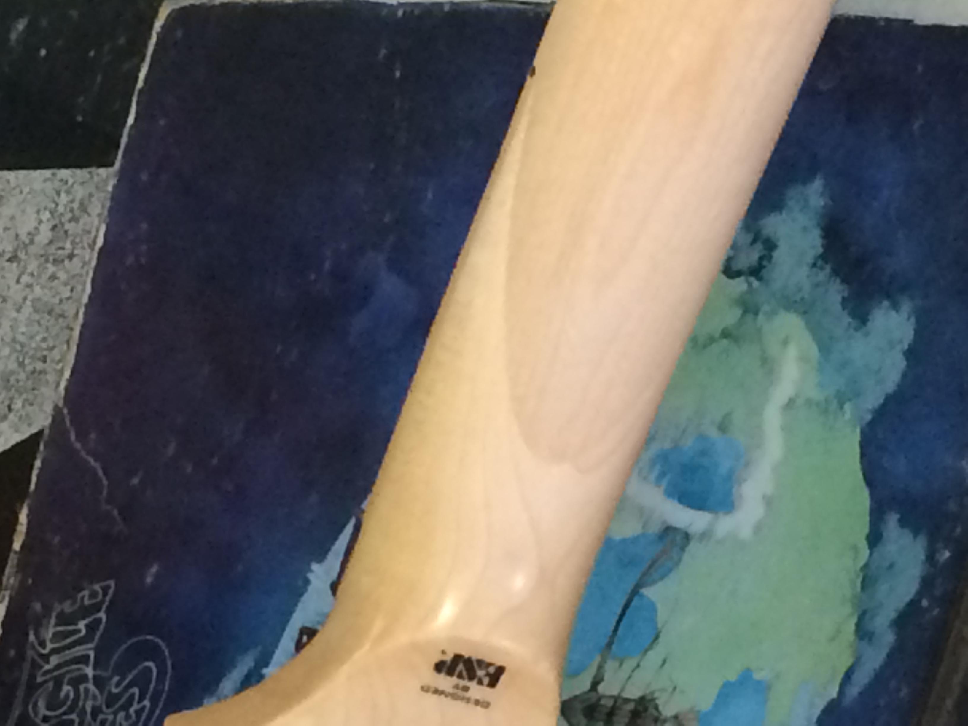 Recent Neck Repair