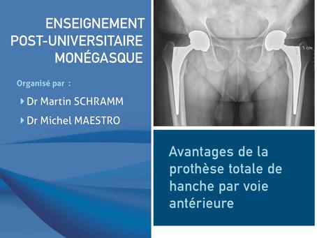 Avantage de la prothèse totale de hanche par voie antérieure
