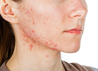 Treating Skin conditions in the Salon: ACNE