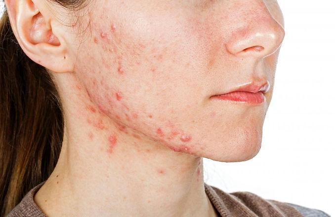 jawline-acne.jpg