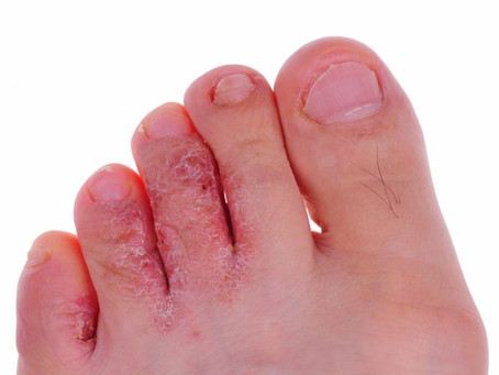 ATHLETE'S FOOT SYMPTOMS & 4 NATURAL REMEDIES