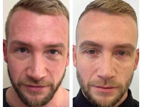 Før og etter Restylane: Tear trough