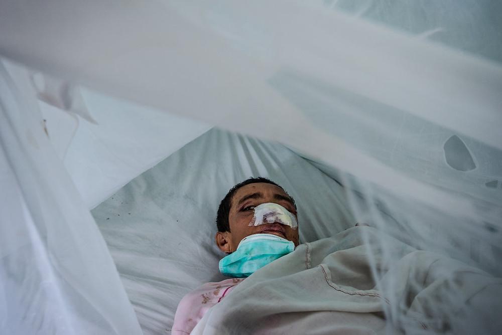 Cleófila Carrillo dochodzi do siebie po tym jak inna pacjentka z El Pampero odgryzłajej nos. Meridith Kohut dla The New York Times