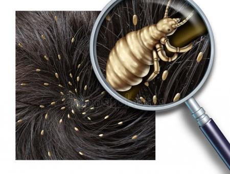 Pediculosis o infestación por piojos