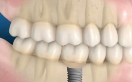 A perda dental e suas consequências