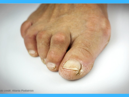 Hammertoe & Bunion Surgery: Before and After