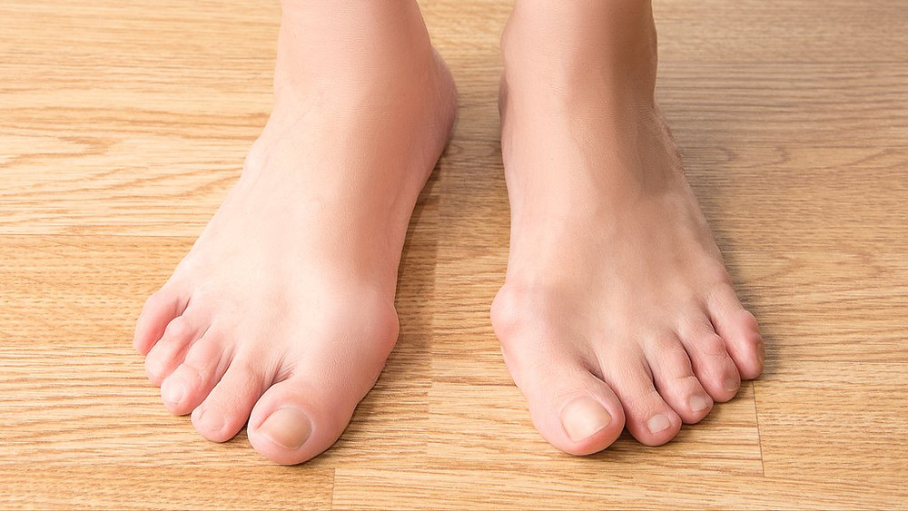 Rheumatoid Arthritis And Your Feet
