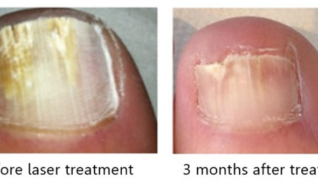 Laser Treatment for Fungal Nail Infections