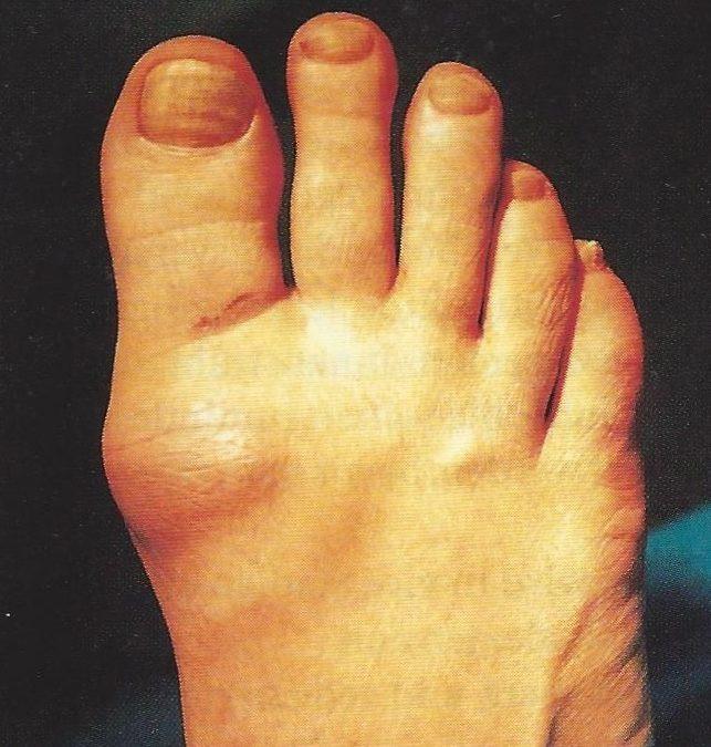 Stiff Big Toe (Hallux Rigidus)