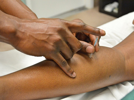Trigger Point Therapy and Acupuncture