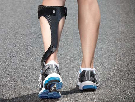Ankle-Foot Orthoses (AFOs)