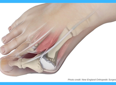 Bunion Removal: Before and After
