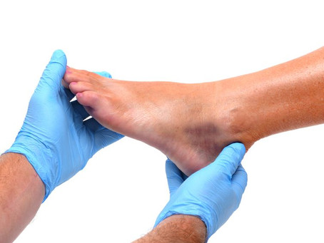 Lateral Ankle Repair