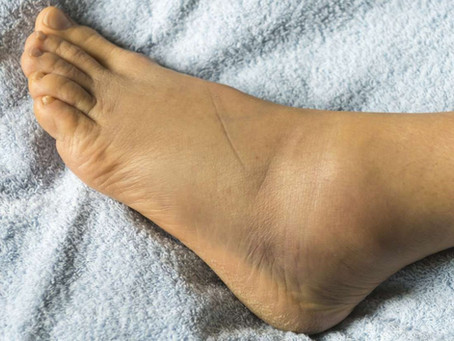Why Do I Get Swollen Feet and Ankles?