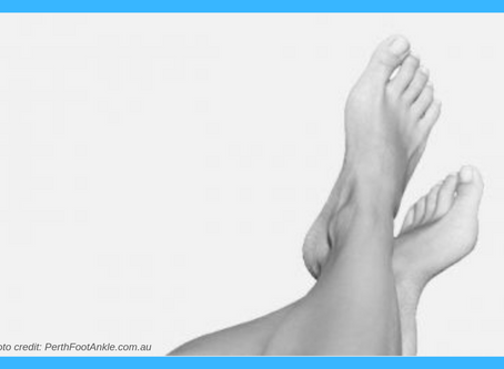 Bunion Surgery Pre and Post Op