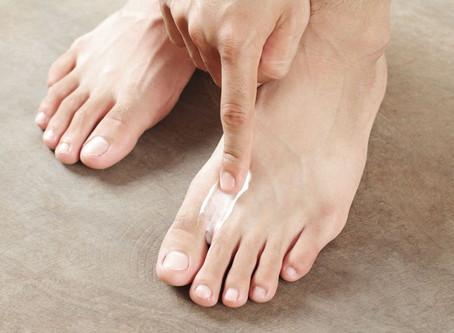 Tinea pedis/Athlete's foot