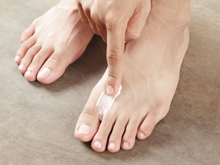 Tinea pedis/Athlete's foot