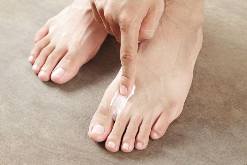 Tinea pedis   Athlete's foot