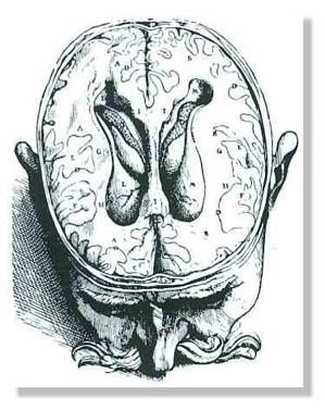 Croquis de Vésale des ventricules