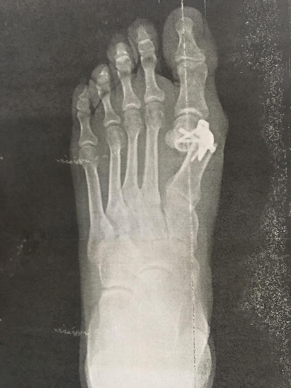 bunion surgery x-ray